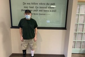 One of the most recent below-the-knee prostheses we created was for Mr. M.M.